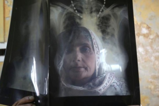 epa04676848 An elderly woman suffering from Tuberculosis (TB) checks her x-ray at the Chest Disease Hospital in Srinagar, the summer capital of Indian Kashmir, 24 March 2014. World Tubercolosis Day (World TB Day) is observed on 24 March every year.  EPA/FAROOQ KHAN