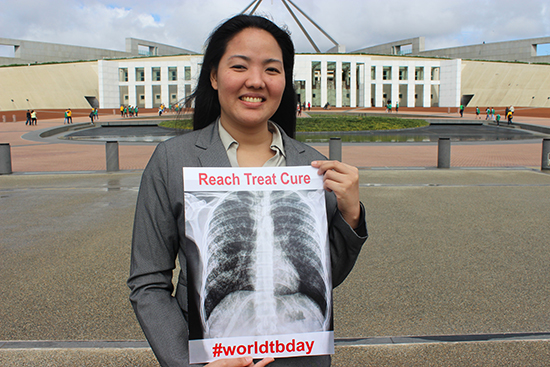 'I contracted tuberculosis at 25 and lost my sight'